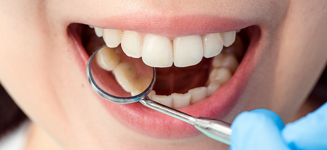 szájsebészeti foghúzás után