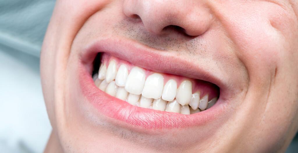 Lelki eredetű lehet-e a fogbetegségek okai - fogfájás, fogínygyulladás